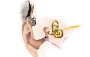 La 2e génération d'implant actif à conduction osseuse arrive sur le marché avec le Bonebridge BCI 602 de Med-El