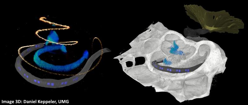 Un pas de plus vers les implants cochléaires optiques