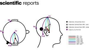Des chercheurs enregistrent un électroencéphalogramme via un implant cochléaire