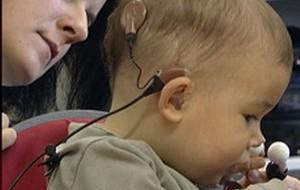 Deux implants cochléaires donnent de meilleurs résultats chez l'enfant