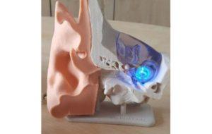 L'implant cochléaire de demain pourrait fonctionner à la lumière