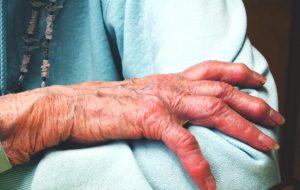 Une étude longitudinale pointe les liens entre ostéoporose et perte d'audition