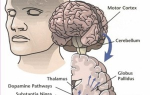 La maladie de Parkinson peut également entraîner une perte auditive : l'absence de dopamine en cause.