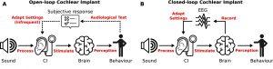 reglage implant en utilisant électroencéphalogramme
